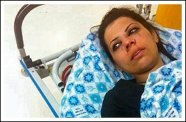 June 14 2013 Palestine women attacked by Israel settlers light rail jerusalem photos album (Click to see the full album)