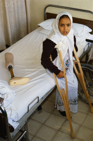 ca. 1989, Jerusalem, Israel --- Sabrina, a 12-year-old amputee wounded by a bullet during the Intifada, waits for her physical therapist in Mokassed Hospital in Jerusalem. --- Image by Ricki Rosen/CORBIS SABA