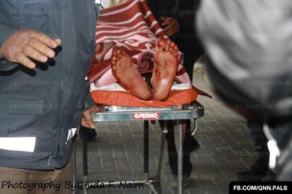 A wounded in as-Shifa hospital in Gaza March 10, 2012