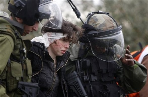 Israeli activist Niumie Leyt ,22, who was injured on her head by a rubber bullet from Israeli soldiers during a demonstration against the expansion of the nearby Jewish settlement of Halamish in the West Bank village of Nabi Saleh near Ramallah, Friday, March. 16, 2012. (AP Photo/Majdi Mohammed)