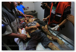 Gaza Under Attack - Aug 21, 2014 (Click to go to the Live Photo Blog)