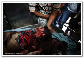 Gaza Under Attack - July 9, 2014 (Click to see the full album)