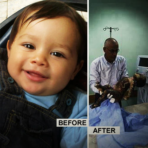 #PHOTO of martyr Omar Al-Mashharawi before and after the Israeli airstrike burned his little body to death by Ismael Fadel