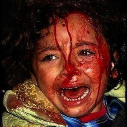 child_injured_screeming1