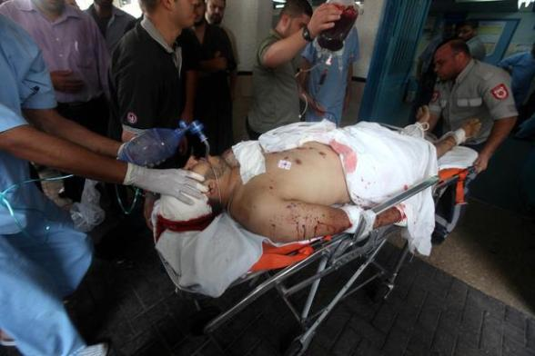 Wounded after Israeli attacks on Gaza Nov 10, 2011 Photo via @thisisGaza
