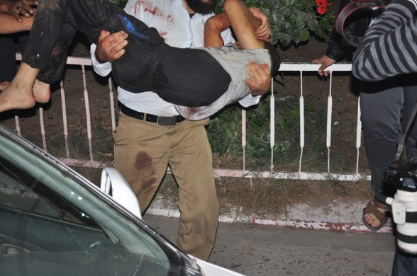 one more picture: a child rushed to hospital as israel kills and injures dozens in Gaza Nov 10, 2012 - Photo by Paltoday