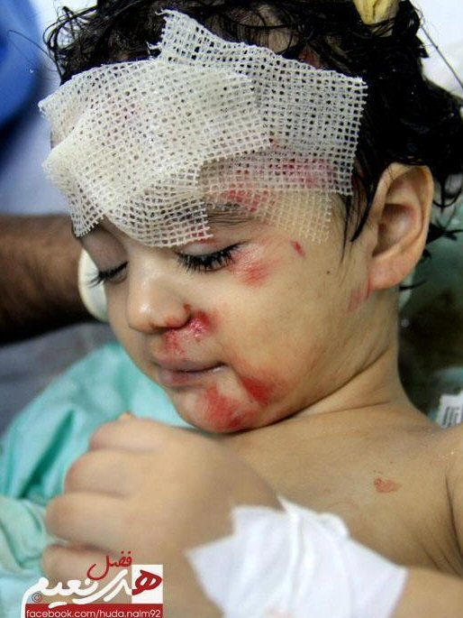 Nov 17 2012 Gaza Under Attack child wounded