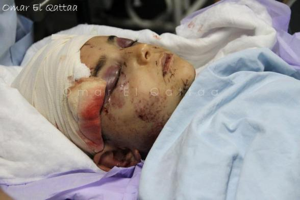 Child, wounded in Nov 20, 2012 bombings. Photo by Omar el Qattaa