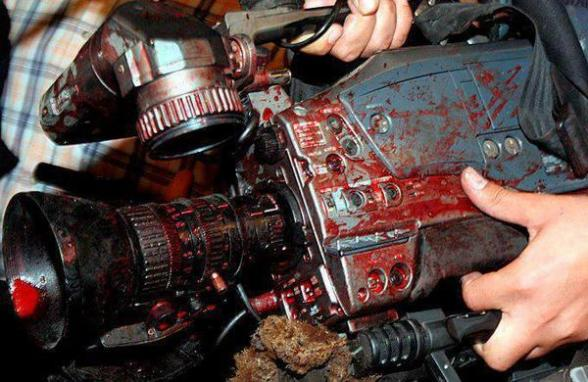Nov 21 2012 Photo cameras covered with blood after press was attacked by Israel. Press is bombed. Offices shelled. 3 lost their lives. One had his leg amputated. Only to prevent they cover: truth, facts of what is really happening in Gaza