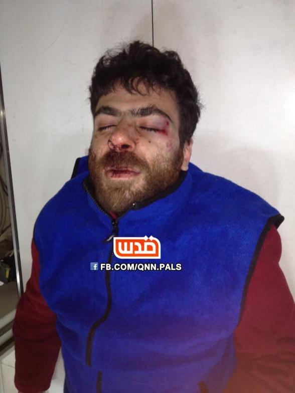 hafeth_omar_injured_quds_net[1]