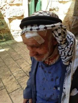 (Click to enlarge) An old fragile man goes to al-Aqsa for Friday prayer, comes home injured after assault by Israeli Defense Forces.  Photo by @omar_faisal86
