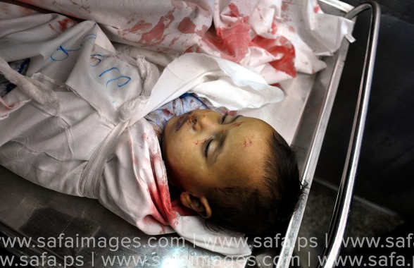 Click to go to the Live Blog | #GazaUnderAttack | July 18, 2014 - In Photos