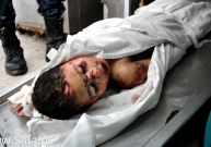 The body of a members of al-Nawasra family who hospital officials said was killed in an Israeli air strike on his house, is seen at al-Aqsa hospital morgue
