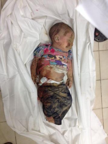 Baby killed July 21 2014
