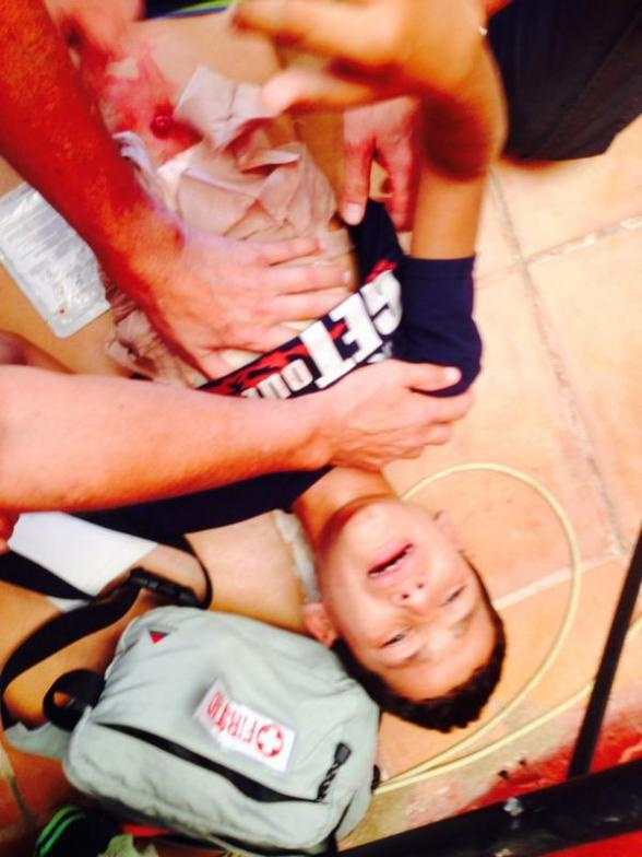 Child with bad shrapnel wound to chest. Very distressing - Photo via Jonathan Miller